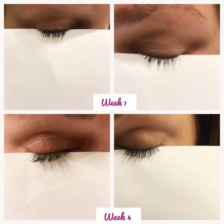 best-lash-growth-serum