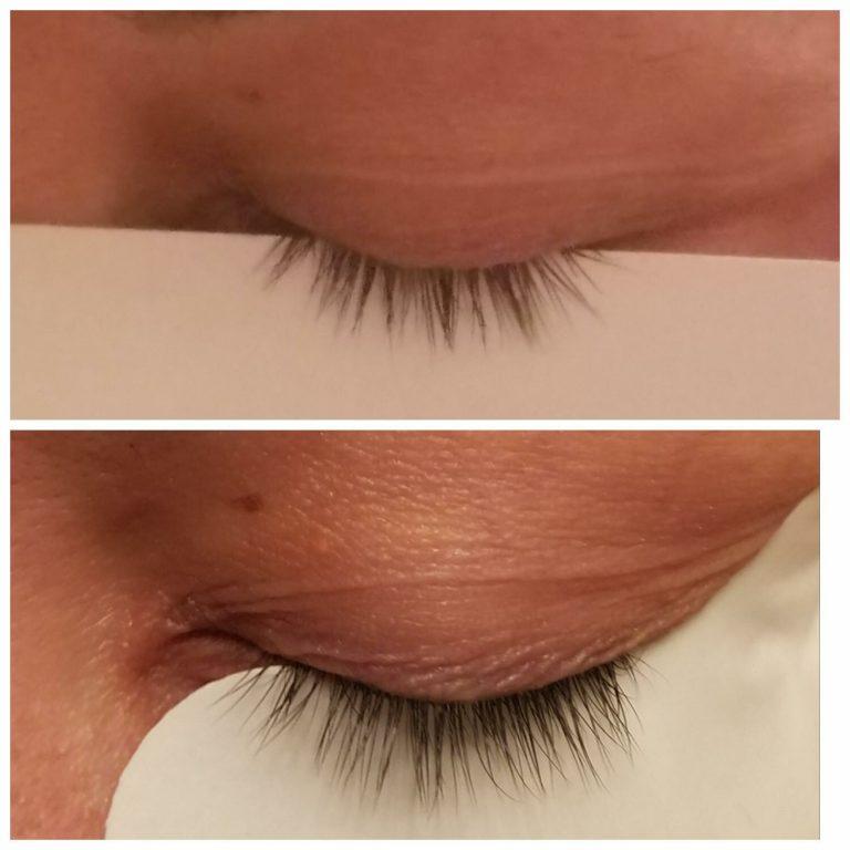 best-lash-growth-serum